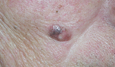 basal cell carcinoma example
